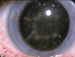 Diabetic cataract